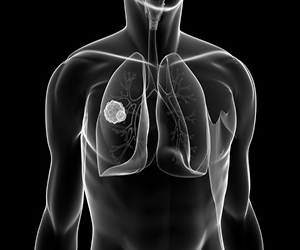 test for lung cancer in Milwaukee
