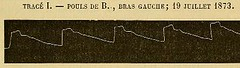 This image is taken from Page 209 of De l'alcoolisme des diverses formes du délire alcoolique et de leur traitement