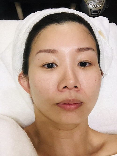 before Aldha facial