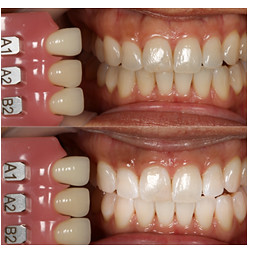 Teeth Whitening with Iconic Dentistry