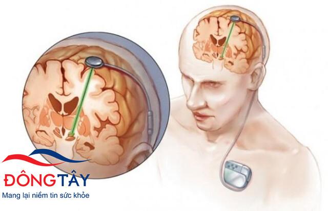 Phẫu thuật kích thích não sâu ngày càng được ưa chuộng mặc dù chi phí điều trị rất đắt đỏ