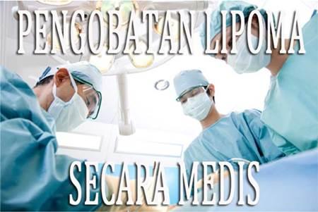 Metode Cara Pengobatan Lipoma Secara Medis